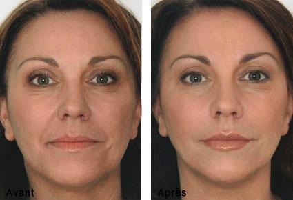 acide hyaluronique soins du visage